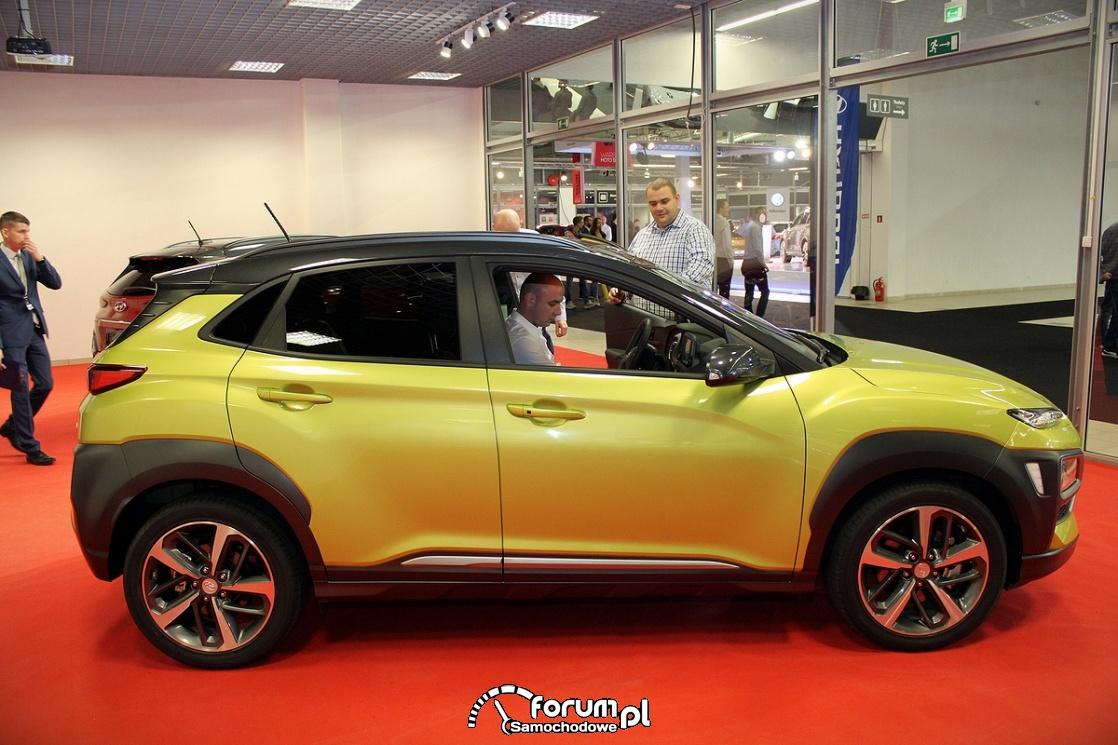 Hyundai Kona, bok
